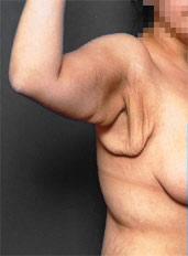 Arm Lift Photos: Case 3