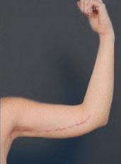Arm Lift Photos: Case 2