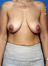 Breast Augmentation with Fat Transfer Photos (No Implants): Case 1 - before