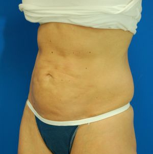 Liposuction Revision Photos: Case 1 - before