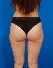Liposuction Revision Photos: Case 3 - After 4 Months