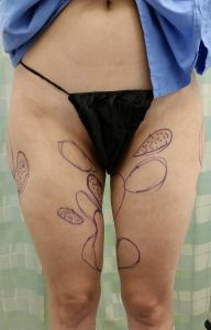Liposuction Revision Photos: Case 3 - Markings