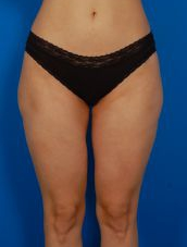 Liposuction Revision Photos: Case 3 - before