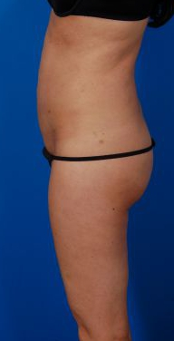 Revision Liposuction Photo Case 4