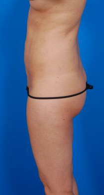 Revision Liposuction Photo Case 4 - After 5 Months