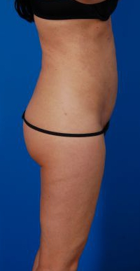 Revision Liposuction Photo Case 4 - before