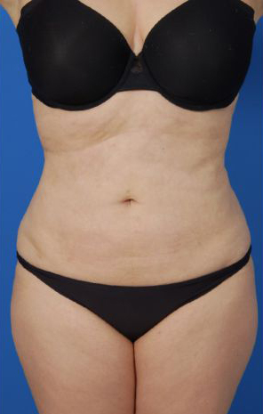 Liposuction Revision Photos: Case 5 - after