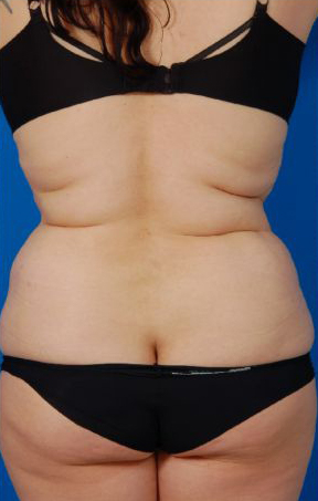 Liposuction Revision Photos: Case 5 - before