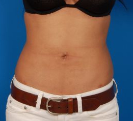 Liposuction Revision Photos: Case 6 - After 7 Months