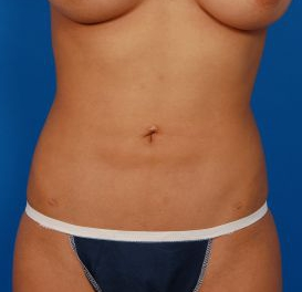 Liposuction Revision Photos: Case 6 - before