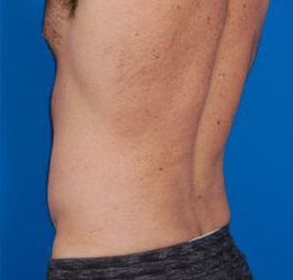Liposuction For Men Photos: Case 5 - After 6 Weeks