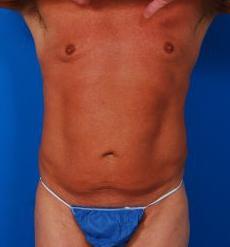 Liposuction For Men Photos: Case 6