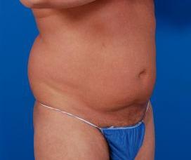 Liposuction For Men Photos: Case 6 - before