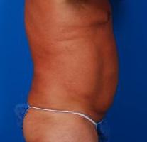 Liposuction For Men Photos: Case 6 - After 6 Months