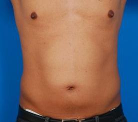 Liposuction For Men Photos: Case 7