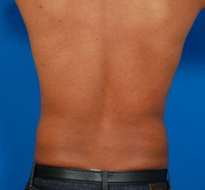 Liposuction For Men Photos: Case 7 - before