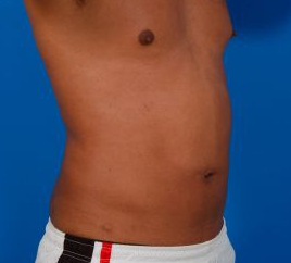 Liposuction For Men Photos: Case 7 - After 3 Months