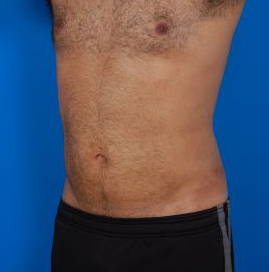 Liposuction For Men Photos: Case 8 - After 4 Months