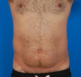 Liposuction For Men Photos: Case 8