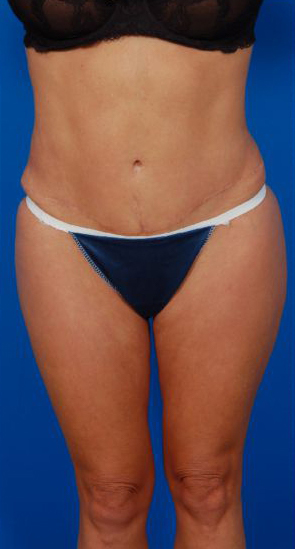 Revision Liposuction Photo Case 7 - after