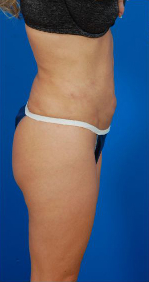 Revision Liposuction Photo Case 7 - before