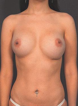 Breast Asymmetry Photos: Case 5