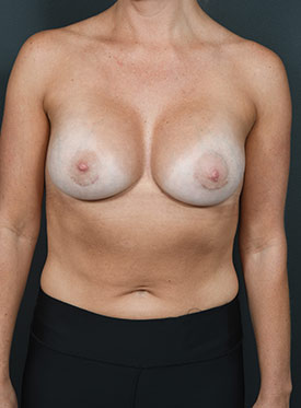 Breast Augmentation-with Implant: Case  36