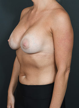 Breast Augmentation-with Implant: Case  36 - after