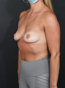 Breast Augmentation-with Implant: Case  36 - before