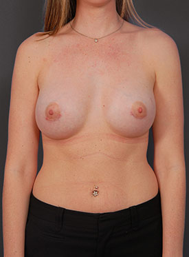 Breast Augmentation-with Implant: Case  37