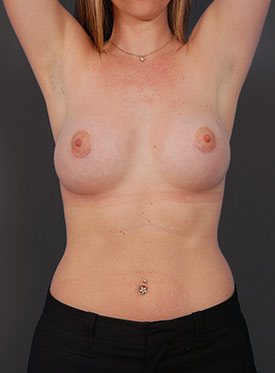 Breast Augmentation-with Implant: Case  37 - after