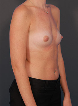 Breast Augmentation-with Implant: Case  37 - before