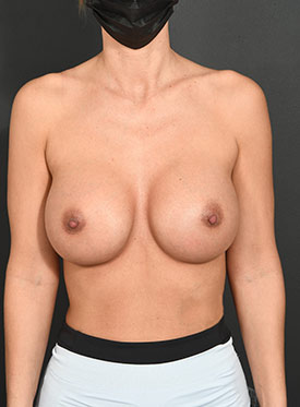 Breast Augmentation-with Implant: Case  38