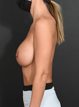 Breast Augmentation-with Implant: Case  38 - after
