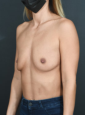 Breast Augmentation-with Implant: Case  38 - before