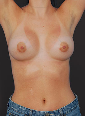 Breast Augmentation-with Implant: Case  39 - after