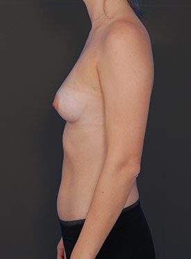 Breast Augmentation-with Implant: Case  39 - before