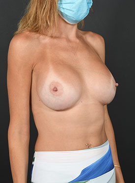 Breast Augmentation-with Implant: Case  40 - after