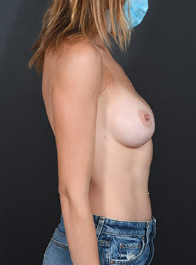 Breast Augmentation-with Implant: Case  40 - before