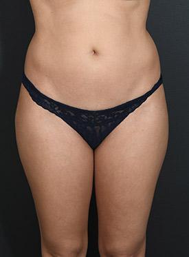 Brazilian Butt Lift Photos: Case 15