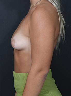 Breast Augmentation-with Implant: Case  41