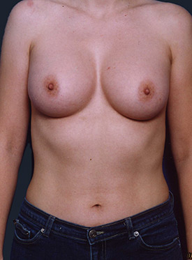 Breast Augmentation-with Implant: Case  42
