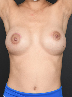 Breast Augmentation-with Implant: Case  43