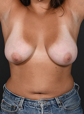 Breast Reduction Photos: Case 9