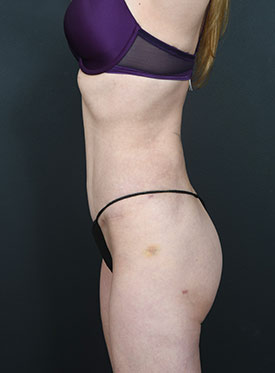 Tummy Tuck Photos – Case 3 - after