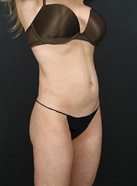 Tummy Tuck Photos – Case 3 - before