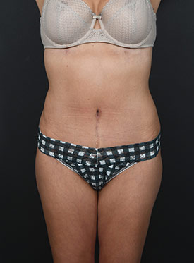 Tummy Tuck Photos – Case 5 - after