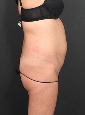 Tummy Tuck Photos – Case 5 - before