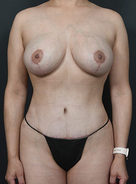 Tummy Tuck Photos – Case 6 - after