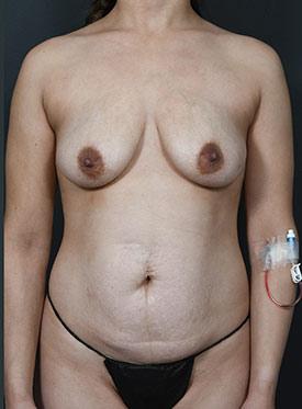 Tummy Tuck Photos – Case 6 - before